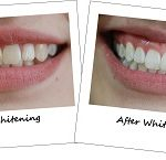 Should You Avail of Teeth Whitening?